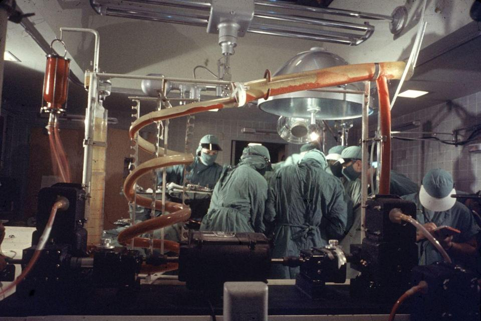 "<p>The view inside an operating room at Duke University, where surgeons use a heart and lung machine during a procedure. </p><p><strong>RELATED: </strong><a href=""https://www.redbookmag.com/body/pregnancy-fertility/a51049/transplant-survivor-dies-after-childbirth/"" rel=""nofollow noopener"" target=""_blank"" data-ylk=""slk:31-Year-Old Heart Transplant Survivor Dies Hours After Giving Birth"" class=""link rapid-noclick-resp""><strong>31-Year-Old Heart Transplant Survivor Dies Hours After Giving Birth</strong></a></p>"