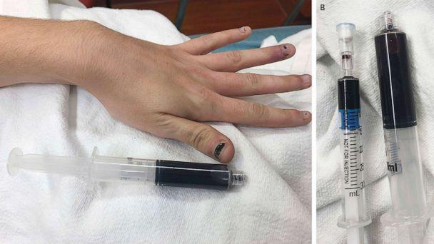 PHOTO: A 25-year-old Rhode Island woman's blood turned navy blue after taking large amounts of an over-the-counter medication containing benzocaine. (New England Journal of Medicine)