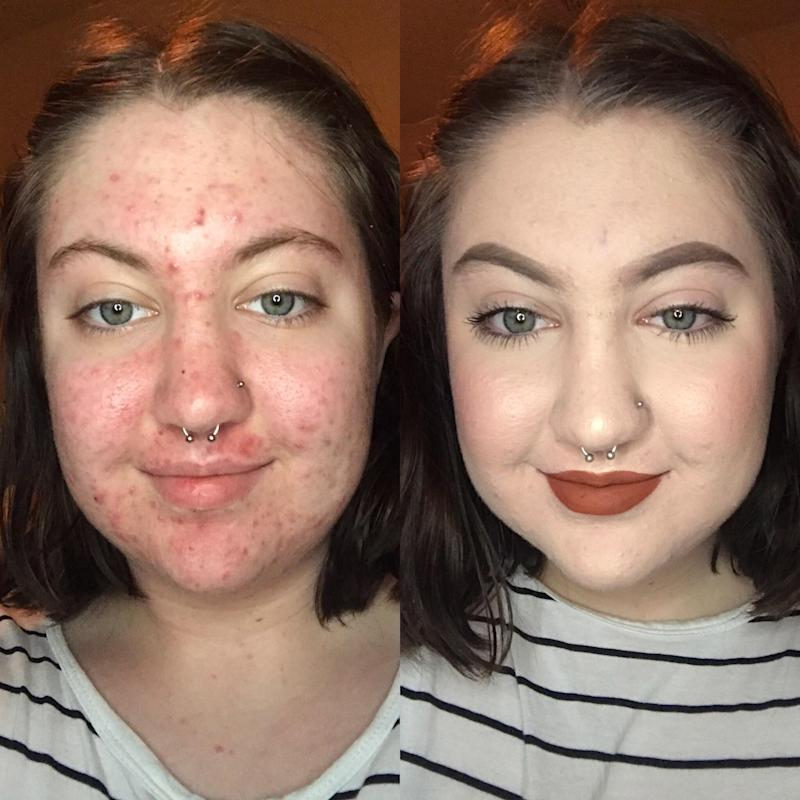 bavjtsn9namy Whoa! See This Womans Amazing Before and After Showing How to Cover Acne with Makeup