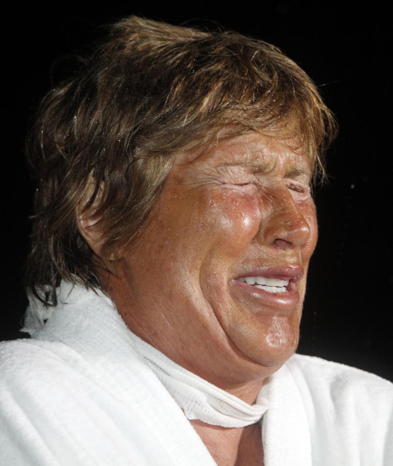 Marathon swimmer Diana Nyad weeps as she talks to friends and reporters at her arrival at Key West, Fla., Sunday, Sept. 25, 2011. Nyad spent more than 40 hours in the shark-filled waters between Cuba and the Florida Keys, climbing into a boat only to be treated for searing welts left by Portuguese man o' war stings. Left swollen and red, Nyad had no choice but to end her trek early when medics warned another sting could be deadly. (AP Photo/Alan Diaz)
