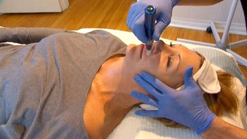 SkinPen Hailed as Newest Breakthrough in Anti-Aging Treatment
