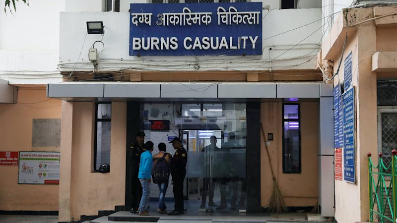 The burns unit where the woman was treated.