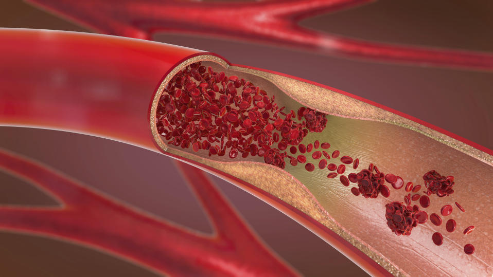 3d illustration of a constricted and narrowed artery (arteriosclerosis).