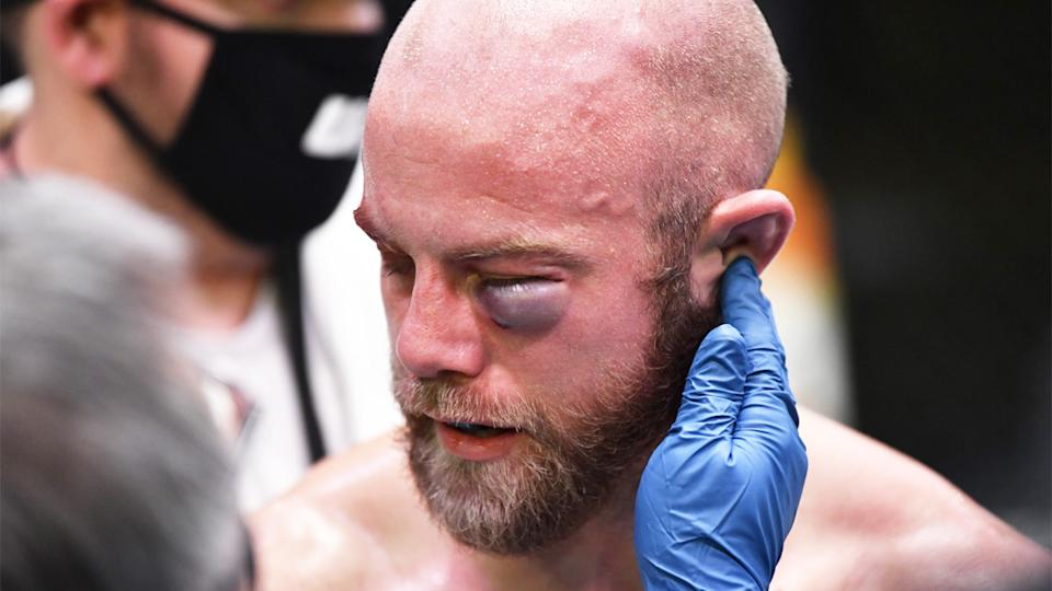 Justin Jaynes' (pictured) eye swelling after being punched.
