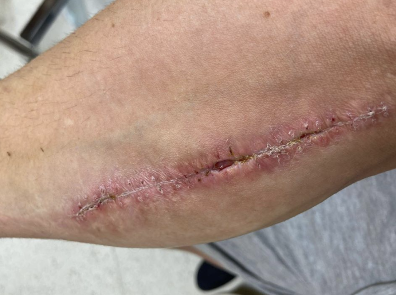 Cal Crutchlow shared images of his surgery (pictured), which her censored on Instagram.