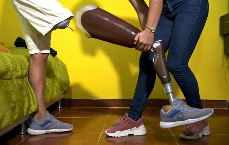 Juan Jose Florian puts on his prosthetic leg with his girlfriend's help before training in Granada, Colombia, in November 2020
