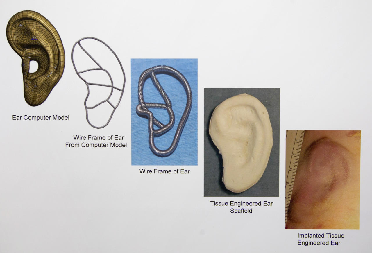 In this July 2, 2012 copy photo a chart provided by the Laboratory for Tissue Engineering and Organ Fabrication at Massachusetts General Hospital, depicts the progression, from left to right, of implanted tissue engineered for ear development and construction, at the lab in Boston. Scientists are growing ears, bone and skin in the lab, and doctors are planning more face transplants and other extreme plastic surgeries. Around the country, the most advanced medical tools that exist are now being deployed to help America's newest veterans and wounded troops. (AP Photo/Laboratory for Tissue Engineering and Organ Fabrication at Massachusetts General Hospital)