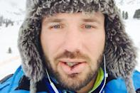 "<p>Ben Cohen needed a whopping twenty stitches in his face when he collided during training. However, the rugby ace was left unphased, saying at the time: ""I've spent my entire career taking knocks so this is nothing new for me."" </p>"