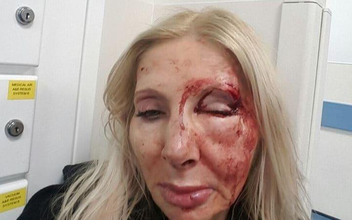 A 60-year-oldtouristwas left needing surgery after she was attacked by a man in his 20s - who failed to chat her up.