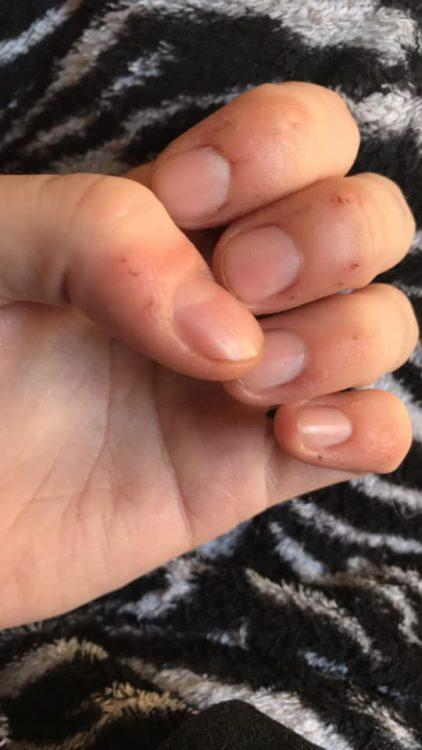 woman with bitten nails