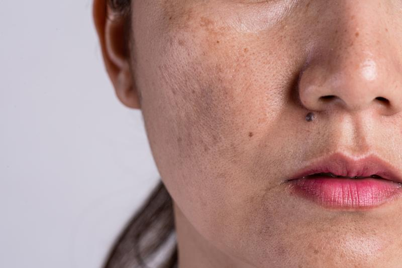 Woman with problematic skin and acne scars. Problem skincare and health concept. Wrinkles melasma Dark spots freckles dry skin and pigmentation on face asian woman.