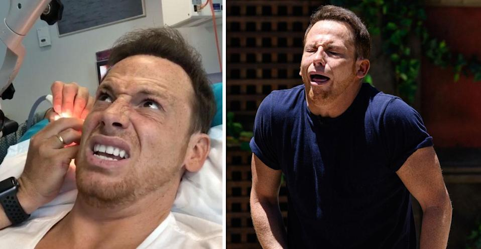 Joe Swash finally has cockroach removed from his ear
