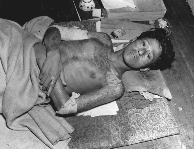 <p>A young man lies on a mat with burns covering his body, after falling victim to the explosion of the atom bomb over Nagasaki, Japan, 1945. (Photo: Corbis via Getty Images) </p>