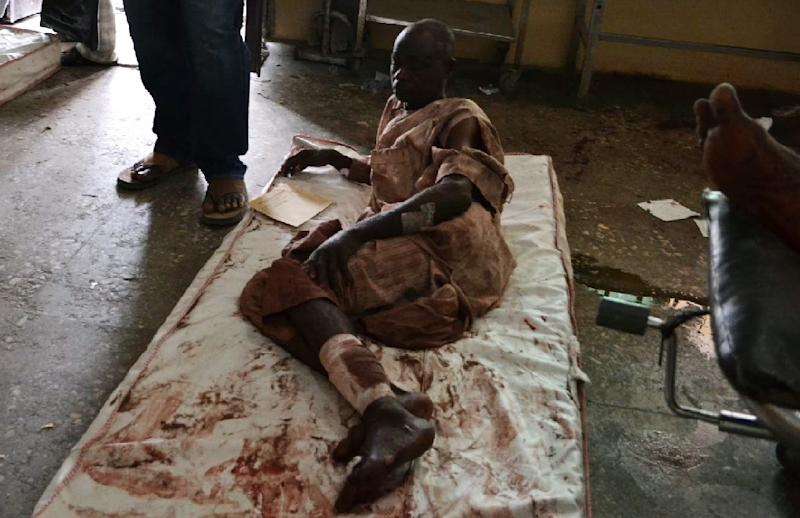 A victim of multiple blasts blamed on Boko Haram photographed in hospital in Maiduguri, Nigeria, on September 21, 2015