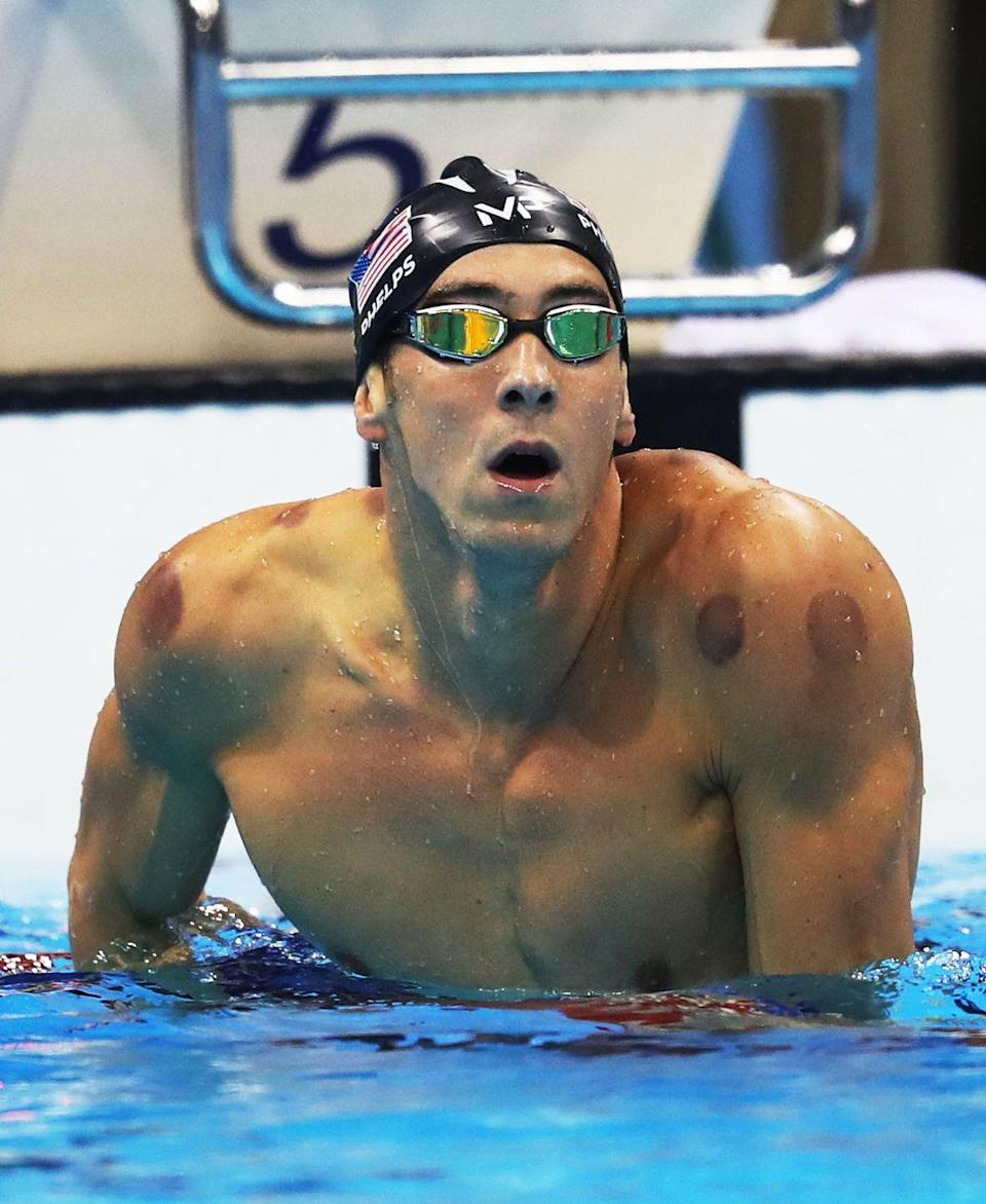 """<p>Michael Phelps caused a flurry of online inquiries after he revealed <a href=""""https://www.usatoday.com/story/sports/olympics/rio-2016/2016/08/07/cupping-michael-phelps-suction-red-dots-rio-olympics/88381088/"""" rel=""""nofollow noopener"""" target=""""_blank"""" data-ylk=""""slk:red marks on his muscles"""" class=""""link rapid-noclick-resp"""">red marks on his muscles</a> during the 2016 Olympics. The welts were a result from cupping, a recovery method that helps relieve tension from muscles. Ever since Phelps brought awareness to the treatment, it has become a major trend in the wellness community. </p>"""