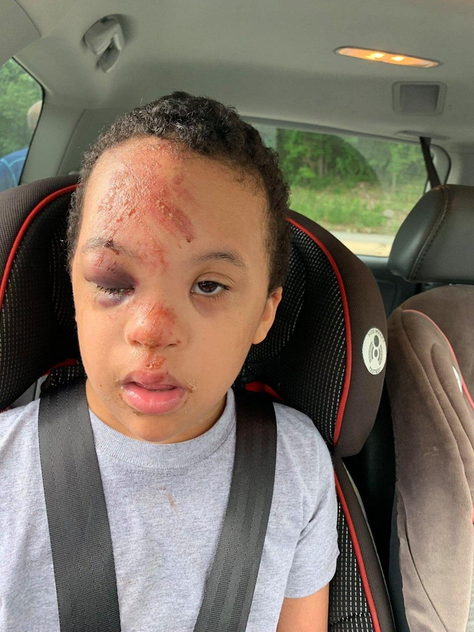Young boy with Down Syndrome was injured on a school bus, and the school refused to provide video footage from the bus to the boy's family. (Credit: Angel Rivera/Facebook)