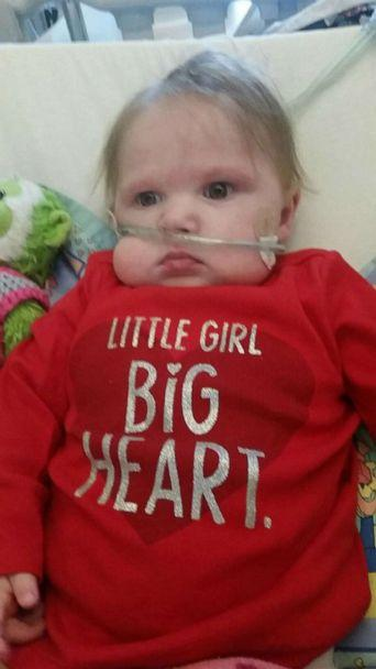 PHOTO: Lola Bond was the recipient of a life-saving heart transplant. (Margaret Bond Vorel )