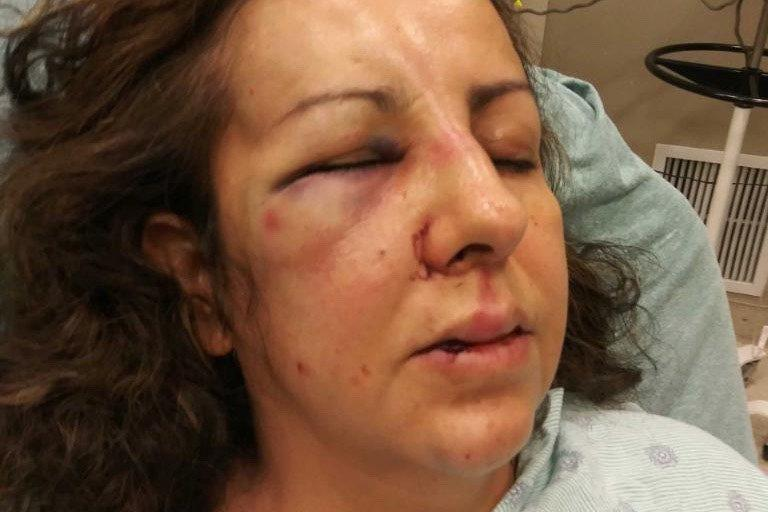 Calif. Mom Says She Was Brutally Beaten While Going to School Principal About Daughter's Bullying