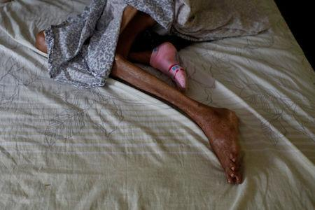 Legs of Sibilina Caro are seen as she rest on bed at her daughter Judith Palmar home in Maracaibo, Venezuela July 25, 2018. Picture taken July 25, 2018. REUTERS/Marco Bello