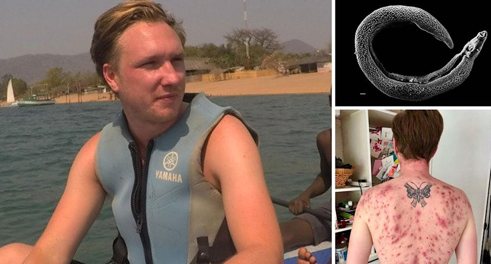 James Michael went swimming in Lake Malawi in south-eastern Africa two years ago (SWNS)