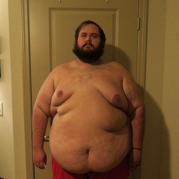 PHOTO: Christopher Hasty weighed in at 462 pounds before he underwent his duodenal switch surgery. (Courtesy Christopher Hasty)