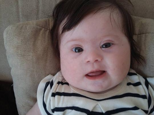 Help: essay on Down syndrome?