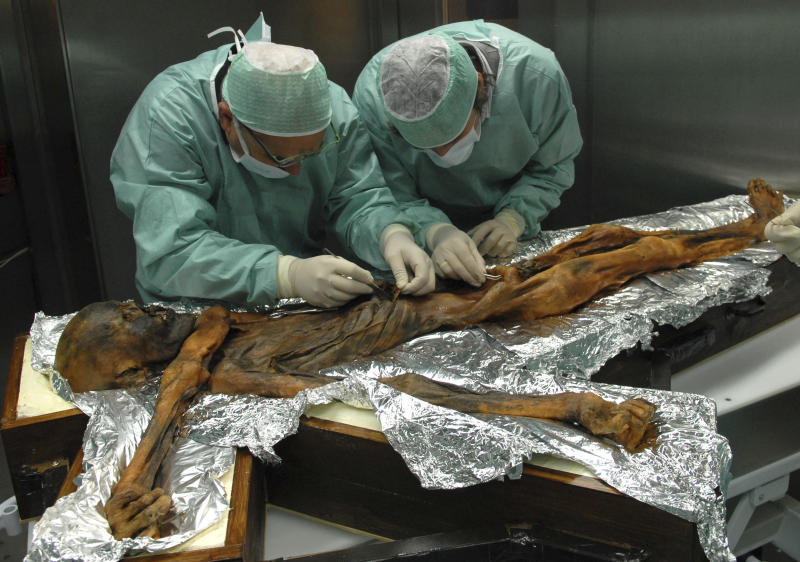 In this November 2010 photo provided by the South Tyrol Museum of Archaeology, researchers examine the body of a frozen hunter known as Oetzi the Iceman to sample his stomach contents in Bolzano, Italy. In a report released on Thursday, July 12, 2018, scientists said the analysis offers a snapshot of what ancient Europeans ate more than five millennia ago. (Marco Samadelli/Eurac/South Tyrol Museum of Archaeology via AP)