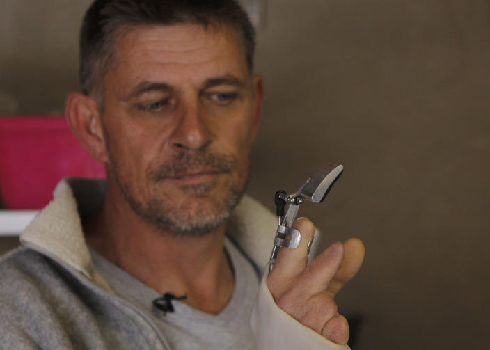 In this photo taken Tuesday, Aug. 20, 2013 in Johannesburg Robohand inventor Richard van As, shows the workings of a digit that he has built for himself after losing four fingers to a circular saw two years ago. Van As, a carpenter, decided to build his own hand after seeing a video posted online of a mechanical hand made for a costume in a theater production by designer Ivan Owen in Seattle USA. Van As and Owen invented the Robohand that uses cables, 3D printing, screws and thermoplastic.(AP Photo/Denis Farrell)