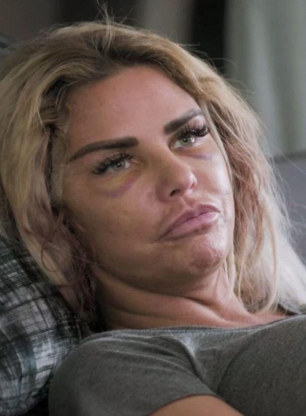 Katie Price is reportedly suffering from 'gruesome wounds' following a recent facelift (Photo: Red Quest)