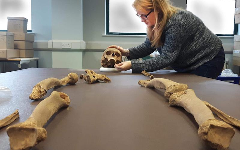 The priest had evidence of malnutrition in childhood - Credit: University of Sheffield