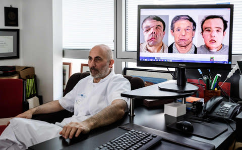 French medicine professor Laurent Lantie next to portrait shots of his patient, Jerome Hamon, showing the steps of the surgery  - Credit: Philippe Lopez/AFP