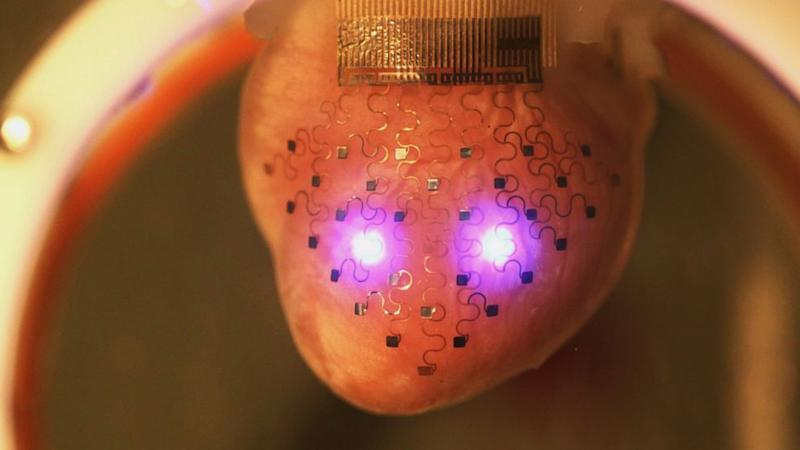 3D Printer Produces Custom-Made Pacemaker