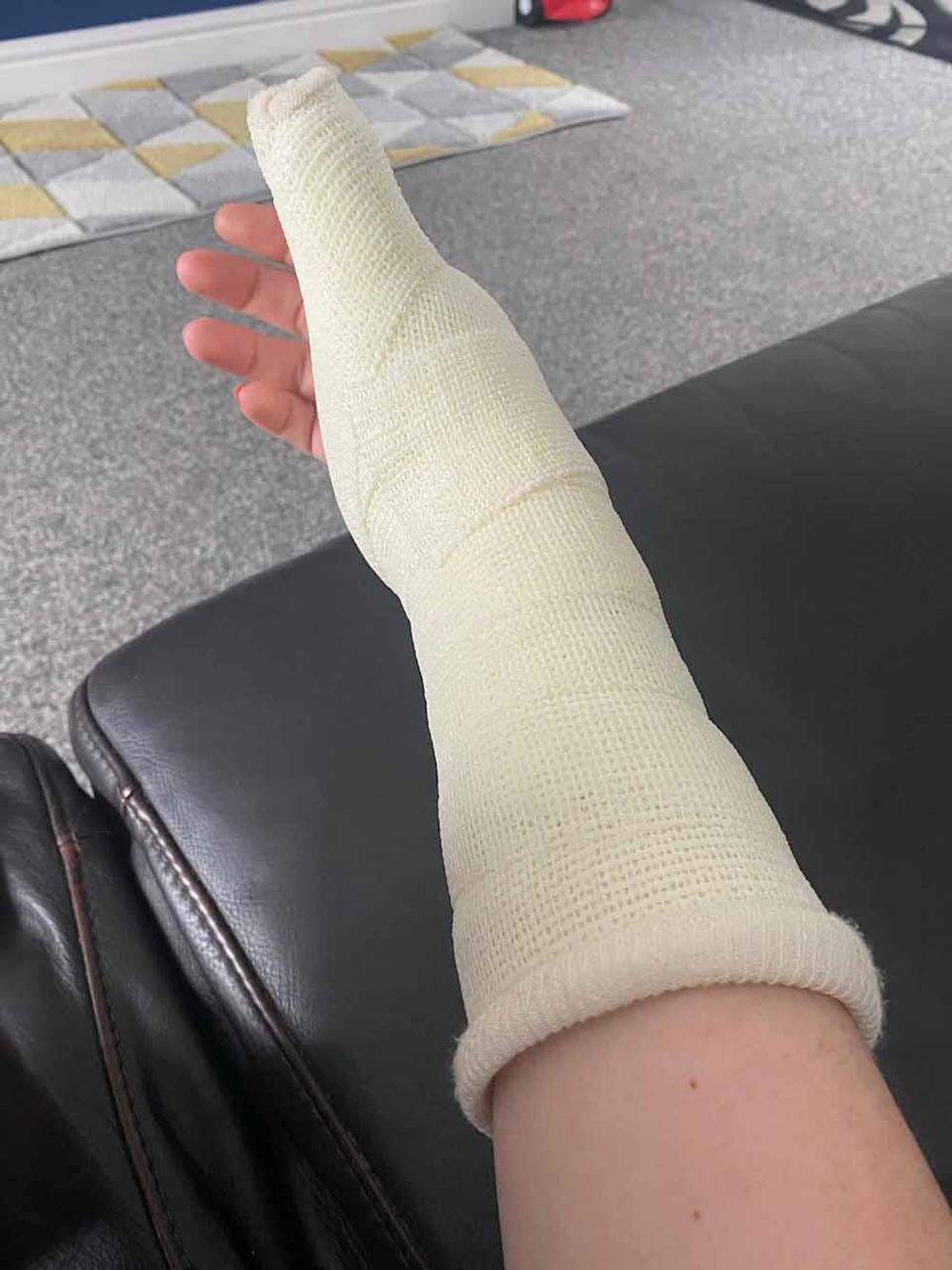 Paige's arm in a hospital bandage. PA REAL LIFE COLLECT