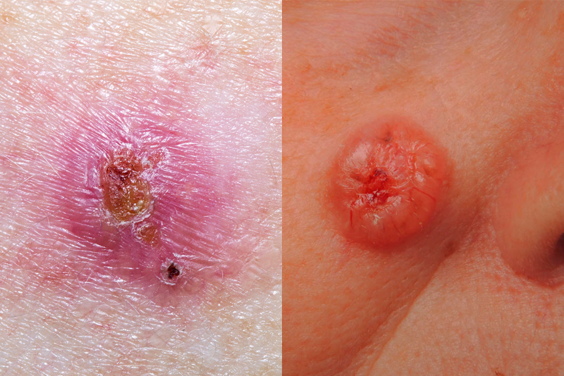 """<p>Basal cell carcinoma is the most common form of cancer in the United States and accounts for about eight out of 10 skin cancers, <a href=""""https://www.cancer.org/cancer/basal-and-squamous-cell-skin-cancer/about/what-is-basal-and-squamous-cell.html"""" target=""""_blank"""">according to the American Cancer Society</a> (ACS). Basal cell carcinoma forms in basal cells, which are found in the lower part of your epidermis (the top layer of your skin). </p><p>Basal cell skin cancers can pop up anywhere, but most frequently occur in areas of the body that are often exposed to ultraviolet (UV) light. Even though it's a common form of skin cancer, basal cell carcinoma tends to grow very slowly, rarely spreads to other parts of the body, and is very treatable, the ACS says. </p><p><strong>Basal cell carcinoma symptoms:</strong> """"Unfortunately, basal cell carcinoma is easy to ignore because a lot of times people think the spot is a pimple or blemish that won't heal,"""" Dr. George says, especially on the face, neck, and ears. Here are the various skin changes to look for:</p><ul><li>Flat, firm, or pale and yellowish areas that resemble a scar </li><li>Pearly, translucent, or shiny bumps or spots </li><li>Red or pink raised patches that may also itch </li><li>Open scabs or sores that don't heal or heal and come back </li><li>Oozing or crusted areas that bleed easily </li><li>Growth of a bump or lesion over time</li></ul><p>It's important to note that basal cell carcinomas are very sensitive and bleed easily after shaving or minor injuries, the ACS says. If what you think is a nick or cut doesn't heal within roughly a week—or you notice any of the changes above—see your doctor.</p>"""