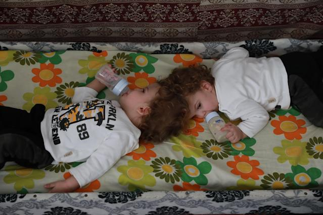 Craniopagus twins, those joined by the head, are incredibly rare. (Getty Images)