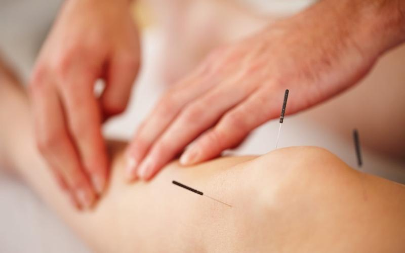 Acupuncture should be used to treat chronic pain rather than opiates, according to new guidance for GPs and sufferers. - Getty