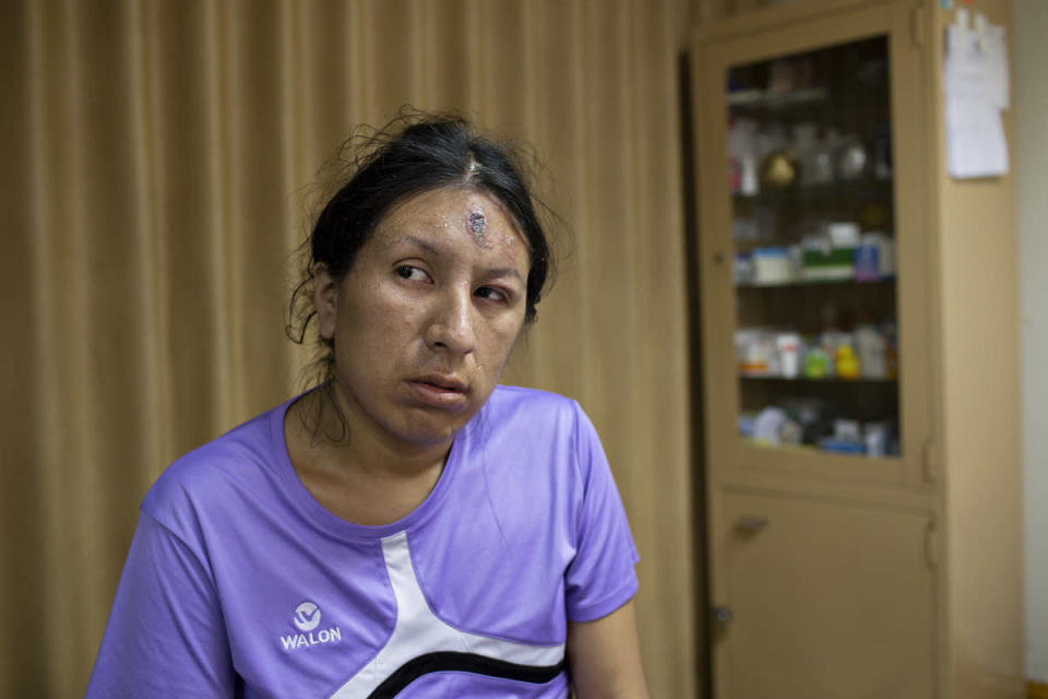 <p>Tamara waits in a doctor's office to get treatment for a scab that has appeared on her forehead. That day the doctor told me that this occurs in people who are infected with HIV. (Photo: Danielle Villasana) </p>