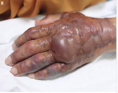 A South Korean mans left hand had to be amputated after it became infected from a bacteria he contracted after eating raw sushi