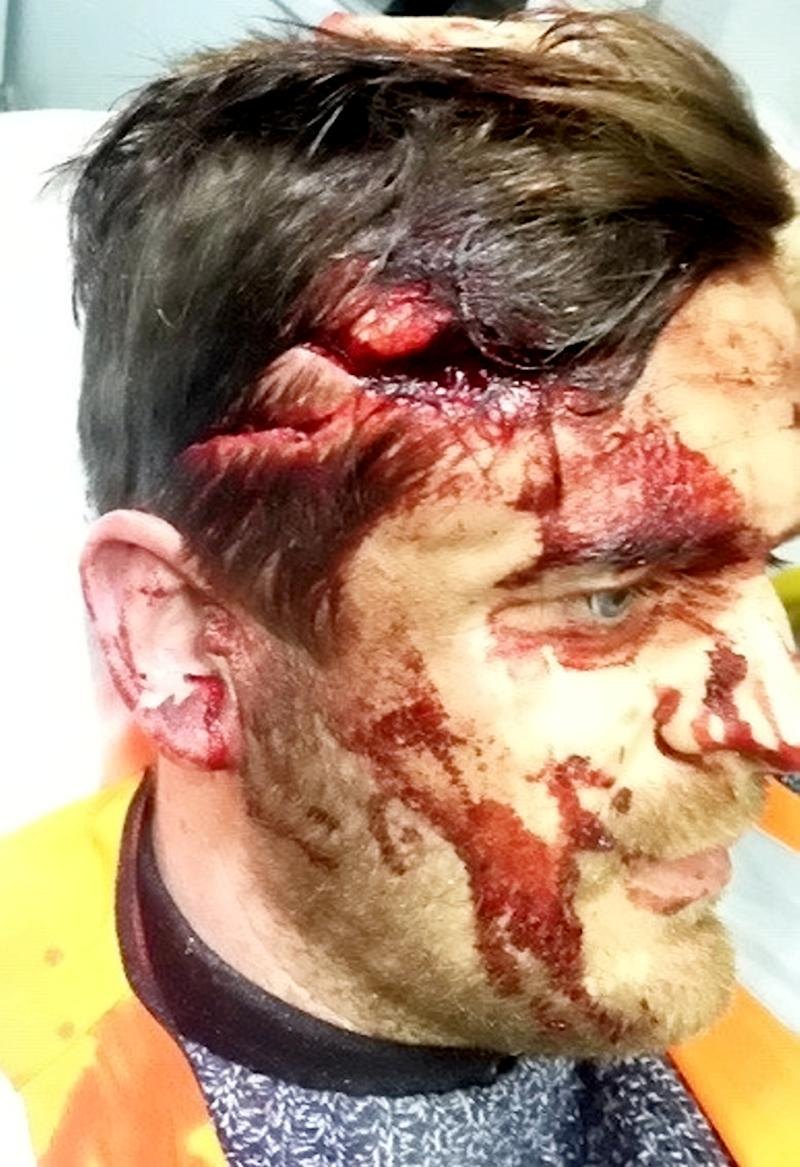 A 10kg tow bar smashed through his windscreen and hit him in the head (Picture: SWNS)