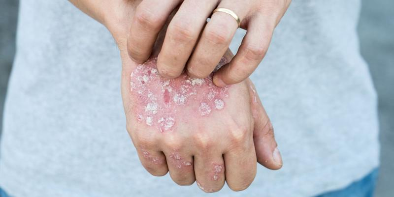 10 Surprising autoimmune disease facts you need to know