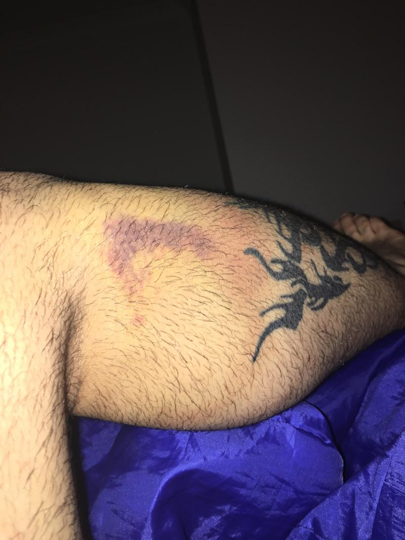 Pictured is a bruise above a tattoo on Mark Demosani's leg after the motorcycle crash.