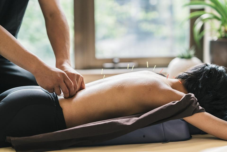 Acupuncture involves small needles being placed into different points of the body (Shutterstock)