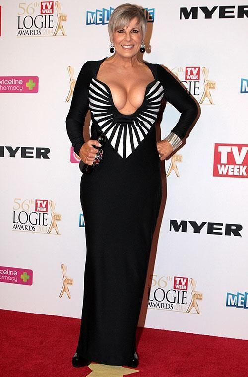TV personality Susie Elelman put her best assets on show at the 2014 awards in a jaw-dropping floor-length gown. The plunging neckline was eye-catching enough but the black and white striped detailing made it absolutely unmissable. If it looks familiar, you'd be right: Susie first wore the Herve Leger gown to the 1995 Logies. Photo: Getty Images.