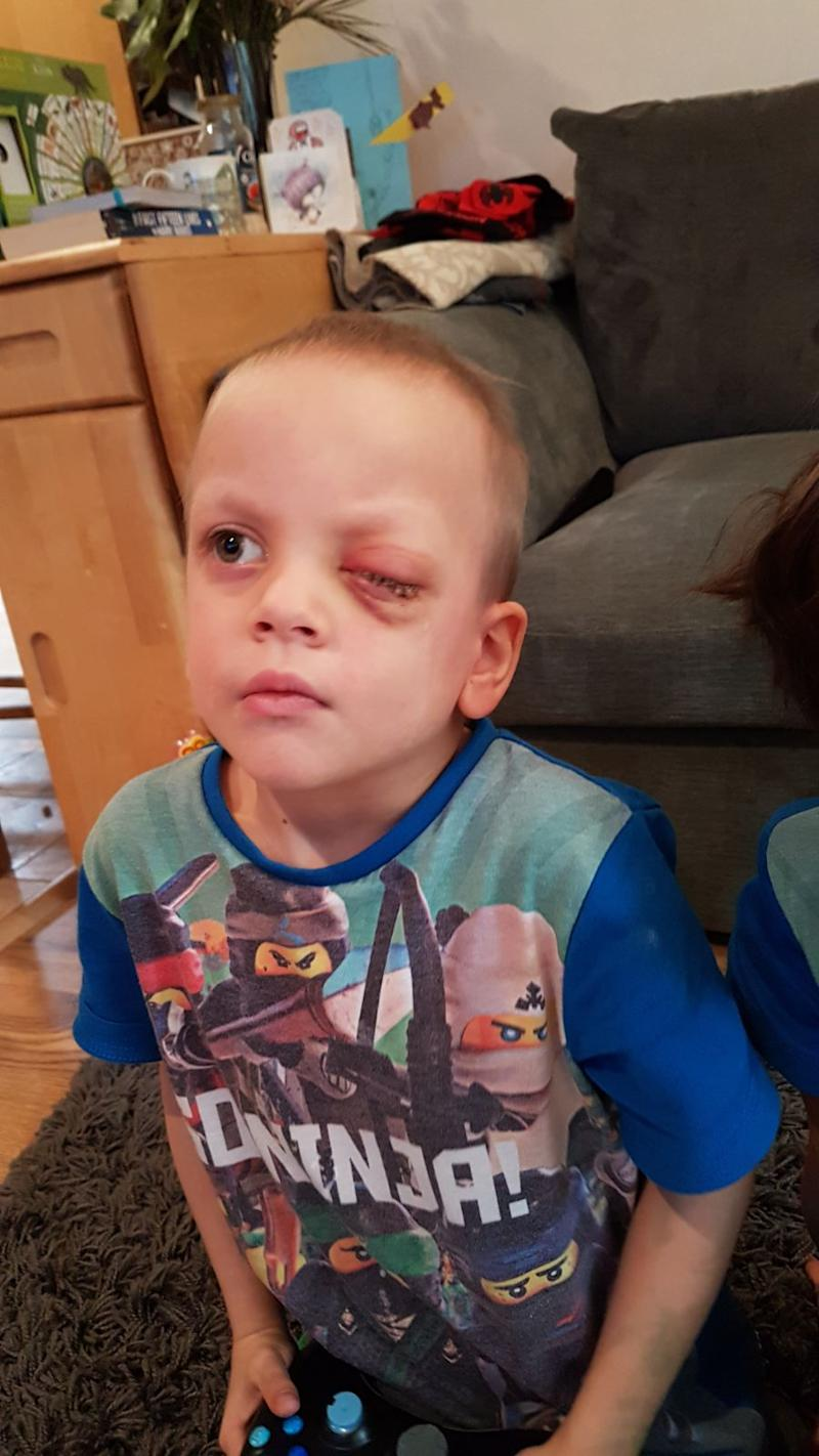 Little Noah had his eye removed in December 2017 [Photo: Laila Gaudry]