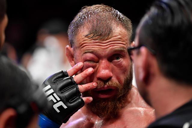 Donald Cerrone reacts after the conclusion of his lightweight bout against Tony Ferguson during UFC 238 at the United Center on June 8, 2019 in Chicago. (Getty Images)