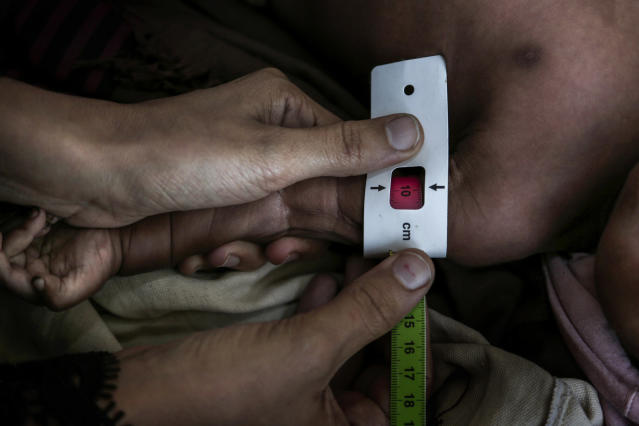 <p>Staff measure the middle upper arm of Salima Ahmed Koryat, a 6-month-old Yemeni girl, to test how malnourished she is at the main hospital in Mocha, Yemen, in this Feb. 10, 2018 photo. The girl, whose family fled fighting in the nearby Mowza region, weighed only 4.2 kilograms (9 pounds). (Photo: Nariman El-Mofty/AP) </p>