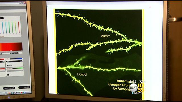 New Study Suggests Treatment >> New Study Suggests Treatment Possibility For Autism
