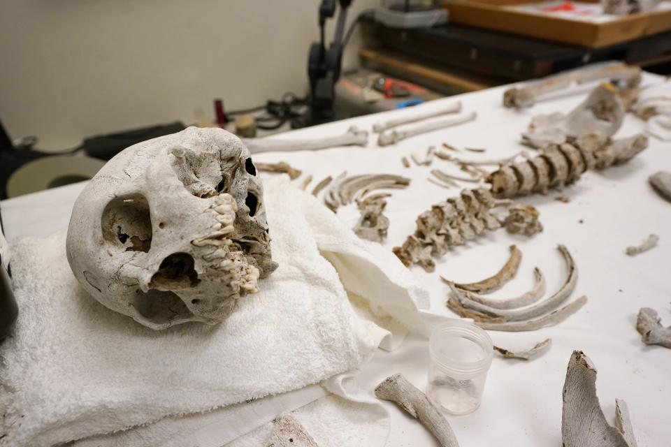 Unidentified bones found in the desert and suspected to be that of a migrant are assembled together for examination at the Pima County Medical Examiner's forensic labs in Tucson, Ariz., on Thursday, May 20, 2021. (AP Photo/Ross D. Franklin)