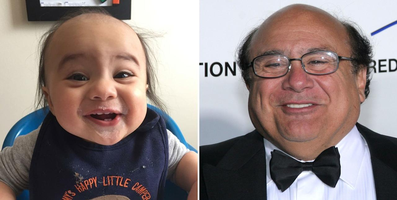 "<p><a rel=""nofollow"" href=""https://www.reddit.com/r/pics/comments/5d089j/my_son_used_to_look_like_danny_devito/"">Source</a></p>"