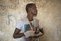 Ethnic Tigrayan survivor Abrahaley Minasbo, 22, from Mai-Kadra, Ethiopia, shows his wounds from machetes, inside a shelter, in Hamdeyat Transition Center near the Sudan-Ethiopia border, eastern Sudan, Tuesday, Dec. 15, 2020. Abrahaley told The Associated Press he was attacked by members of the Ethiopian government-allied militia Al Fano on Nov. 9. (AP Photo/Nariman El-Mofty)